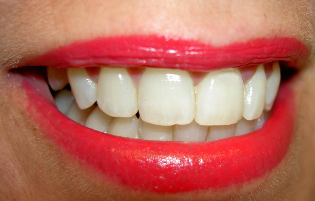 3 väärt soovitust tervete hammaste heaks