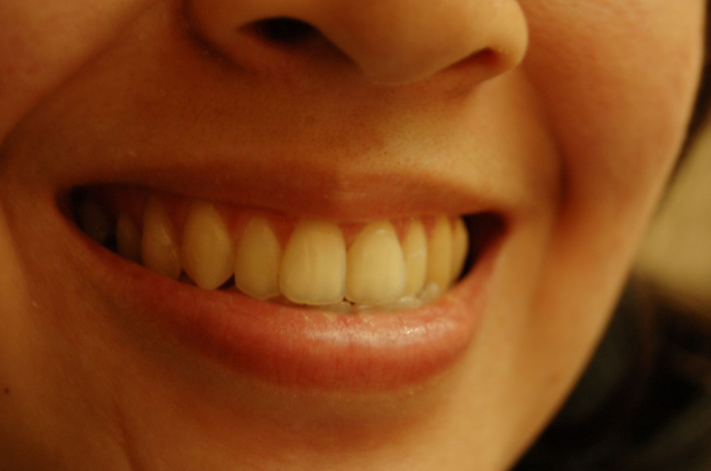 Haigekassa kaalub taas mitterahalise hambaravihüvitise rakendamist