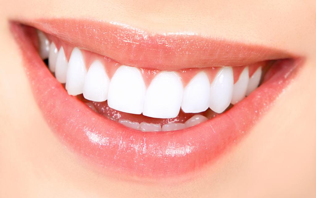 7 nõuannet, kuidas kodustes tingimustes hoida hambaid valgetena